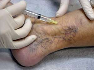 microsclerotherapy treatment for thread veins