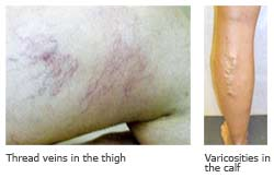 Varicose veins in legs - solutions and treatment of varicose veins