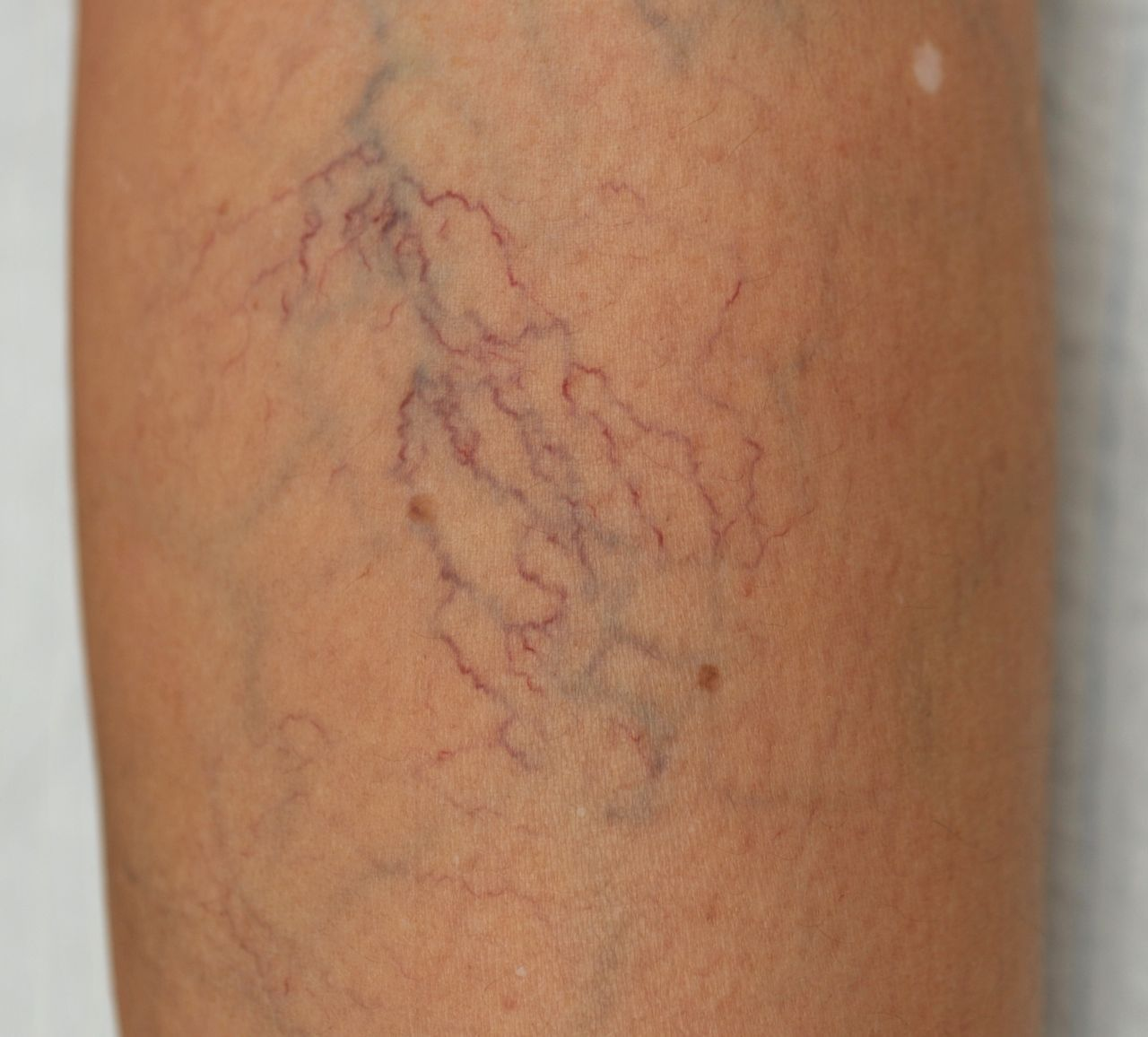 Thread Veins or Spider Veins on Legs - Vein Solutions