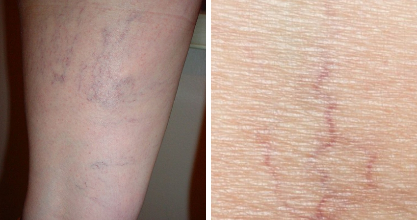 Spider Veins in Legs and on Face - What causes spider veins - Vein Solutions
