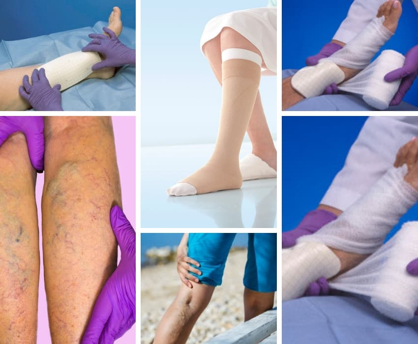 Guide To Venous Leg Ulcers - Causes, Treatments, Advice - Vein Solutions