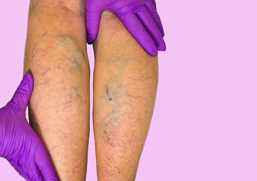 Symptoms of Chronic Venous Insufficiency - Vein Solutions
