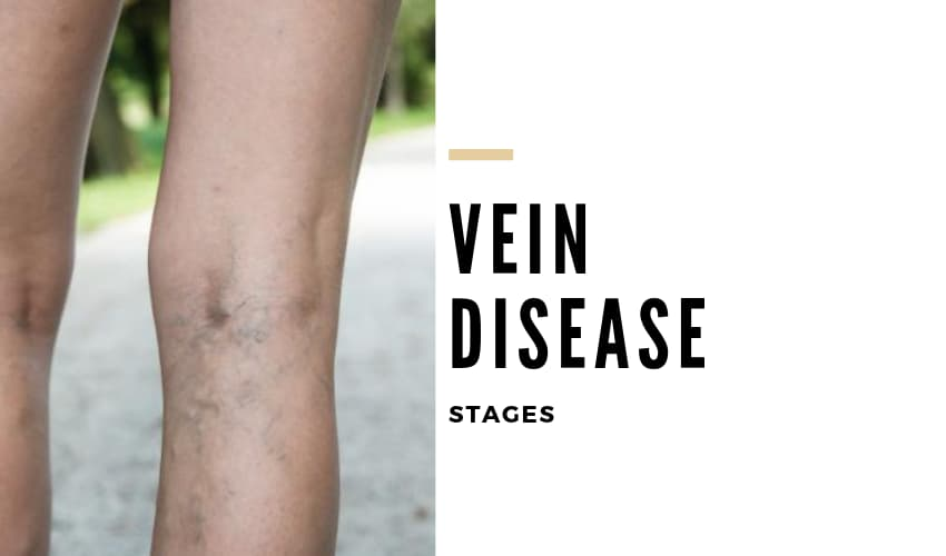 Stages of Vein Disease and when to act - Vein Solutions
