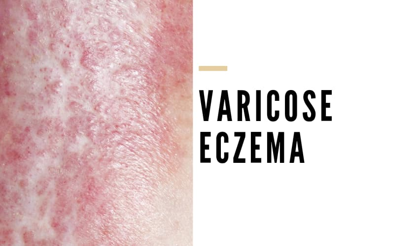 What is Varicose Eczema? - Vein Solutions