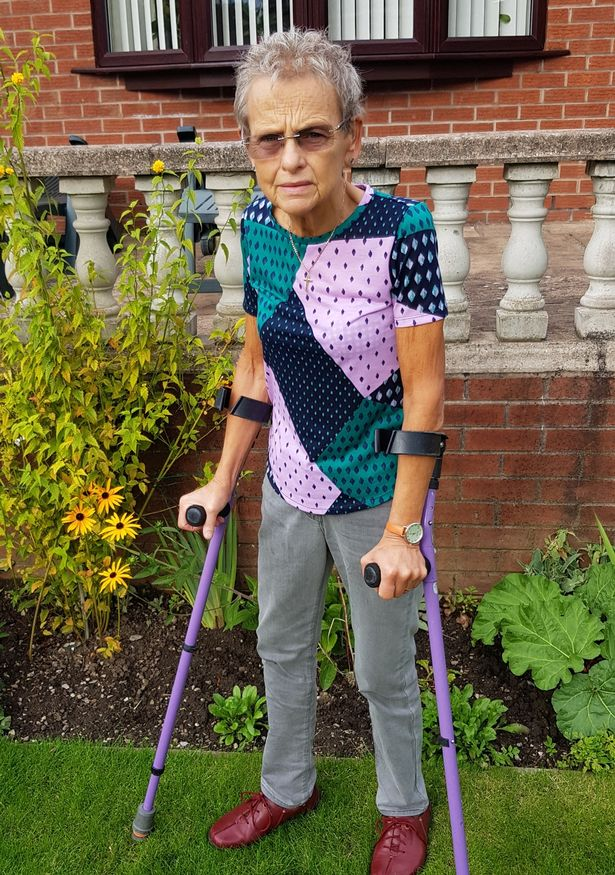 Mary Ellison on Crutches - Vein Solutions