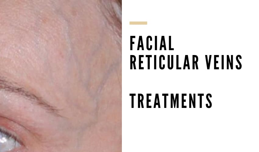 Treatment for Facial Reticular Veins - Blue Veins on Face - Vein Solutions