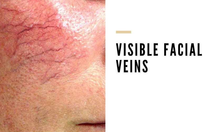 Why Are Veins on Face So Visible - Vein Solutions