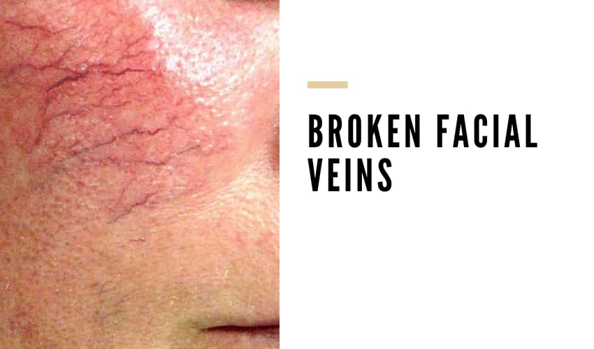 How To Get Rid Of Broken Blood Vessels On Face? - Vein Solutions