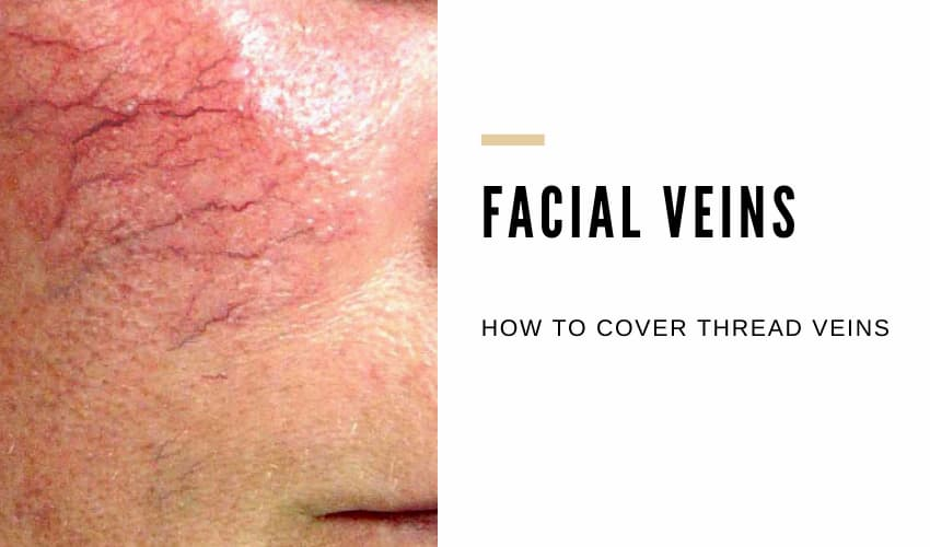 How to Cover Thread Veins on Face Naturally - Vein Solutions